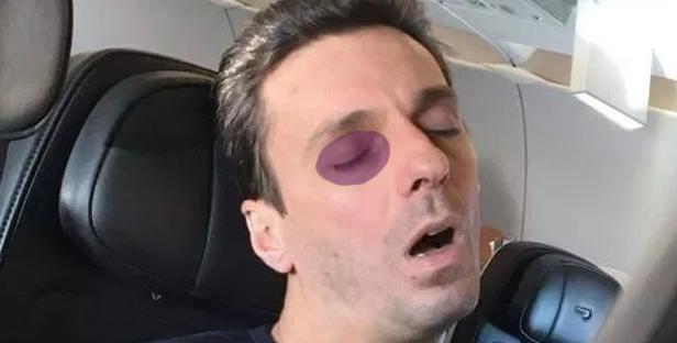 Mircea Badea a fost bătut de un apropo!