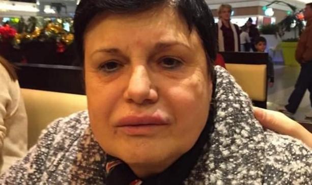 Când ai 62 de ani și îți pui botox pe bani de la TelDrum. Free Liviu Dragnea!