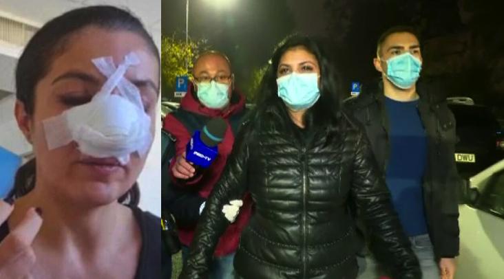 """Femeia care a desfigurat-o pe Cristina Joia şi-a schimbat declaraţia: """"M-a atacat feroce cu nasulavând intența clară de a-mi rupe pumnul! Noroc că aveam boxul pe el, altfel mă nenorocea!"""""""