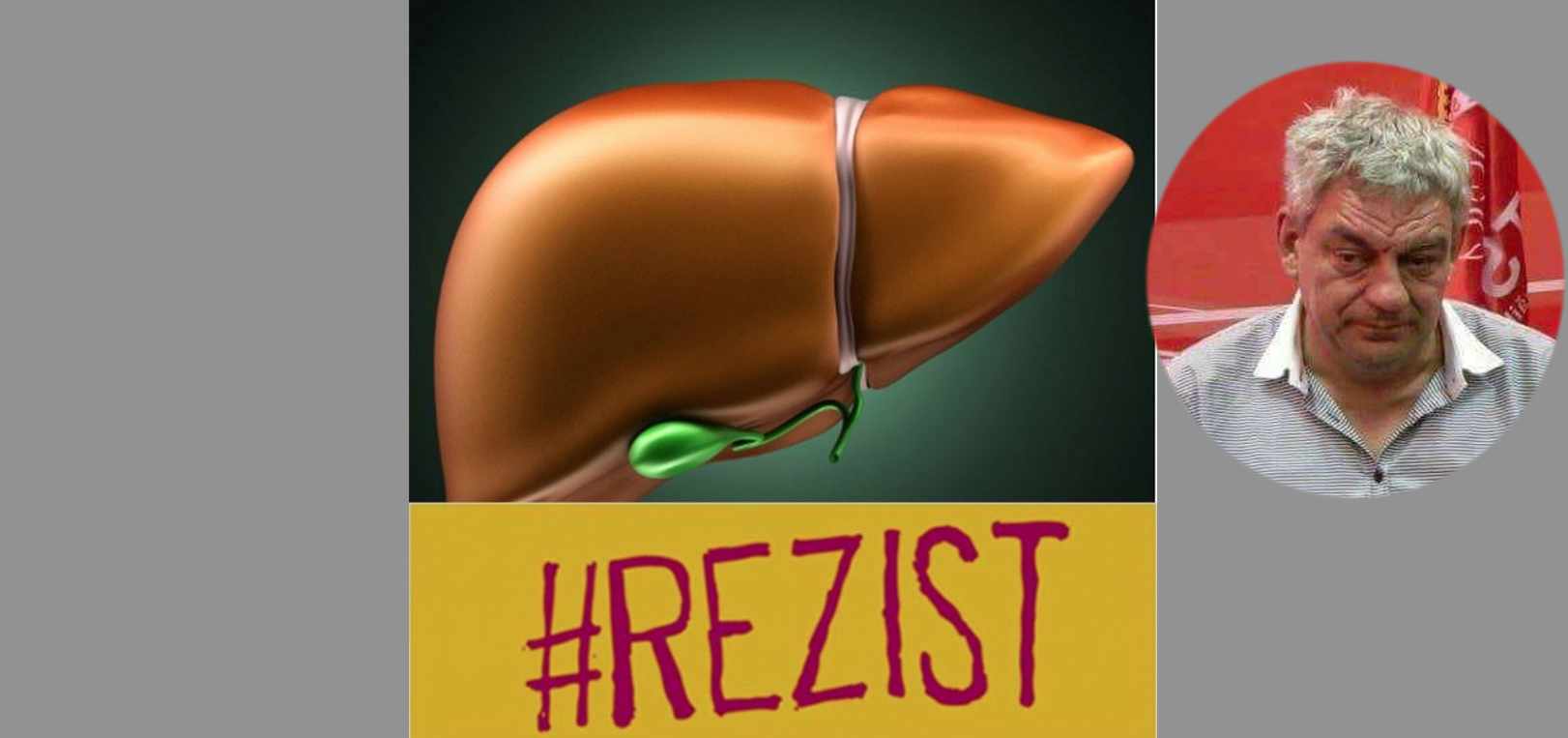 Nu se lasă! Ficatul lui Mihai Tudose și-a pus #REZIST la poza de profil!