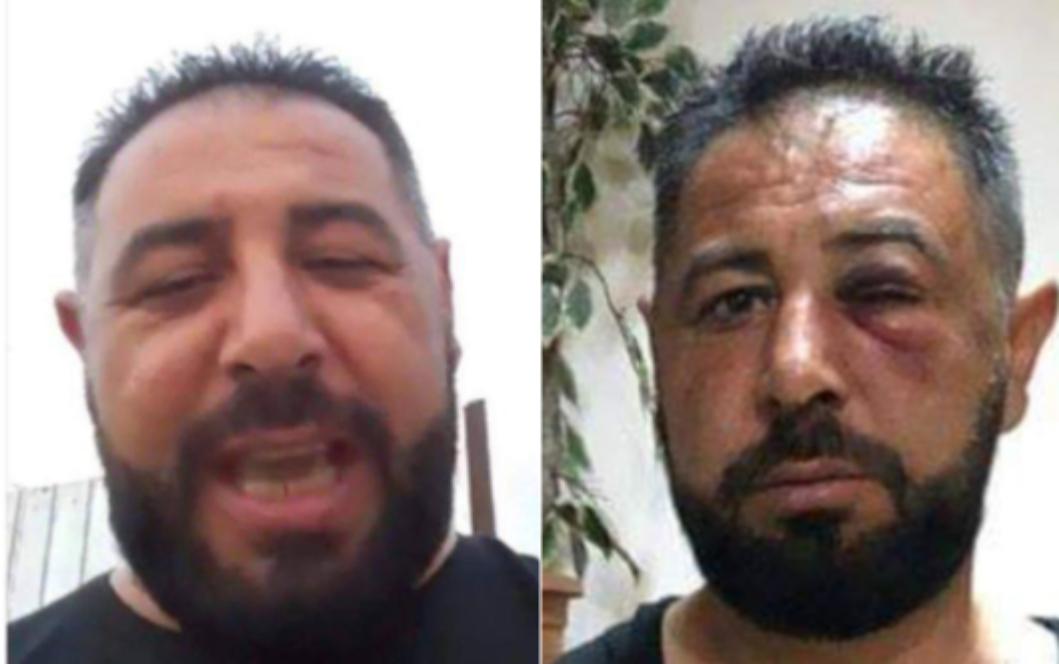 Spartacus din Rahova, înainte și după ce a luat coronavirus de la mascați!