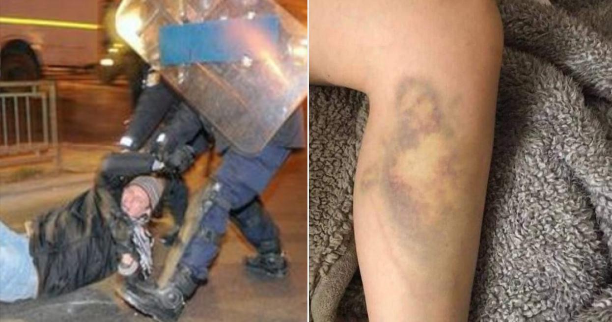 I-a apărut Iisus pe picior după ce a fost bătut de jandarmi!